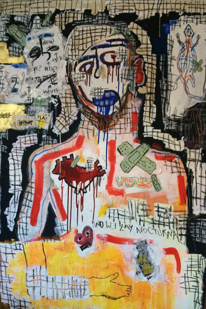 Ewan Keenan, Bandaged Up, 2017